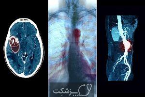 آنوریسم | پزشکت