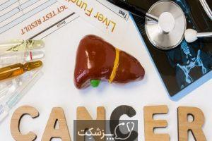 سرطان کبد | پزشکت