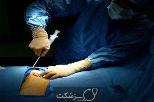 بیوپسی و آسپیراسیون مغز استخوان | پزشکت