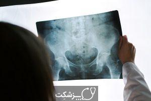 شکستگی لگن | پزشکت