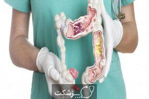 سرطان روده بزرگ   پزشکت