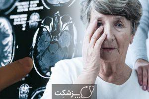 مراحل بیماری آلزایمر | پزشکت