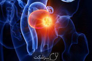 سرطان مثانه | پزشکت