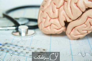 صرع غیبت | پزشکت