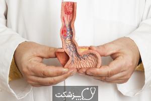 آشالازی | پزشکت