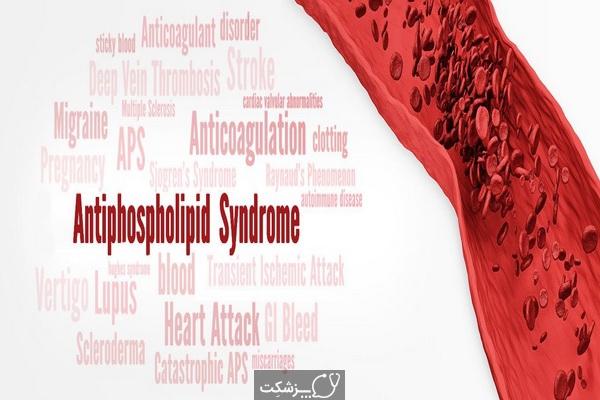 سندرم آنتی فسفولیپید | پزشکت