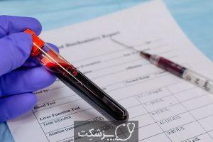 آزمایش خون کبد   پزشکت