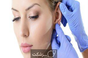 جراحی زیبایی گوش | پزشکت