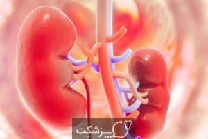 پیوند کلیه | پزشکت