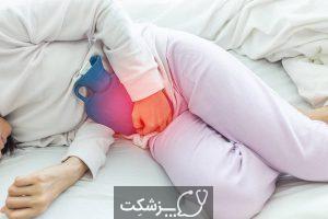 کیست تخمدان | پزشکت