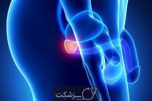 پروستات | پزشکت