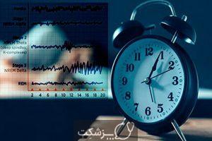مراحا خواب | پزشکت