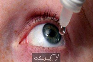 بلفاریت میبومین | پزشکت