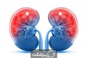 فئوکروموسیتوما | پزشکت
