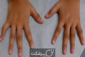 آرتریت ایدیوپاتیک جوانان | پزشکت