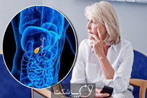 سرطان کیسه صفرا | پزشکت