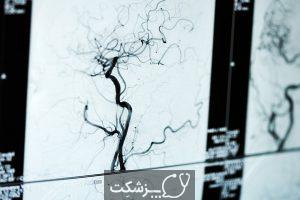 گانگرن | پزشکت