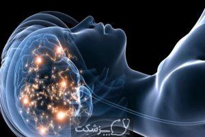 مراحل خواب | پزشکت