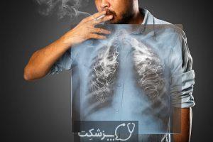فیبروز ریوی | پزشکت