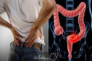 شایع ترین علت هایدرد مقعد   پزشکت