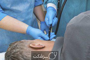 سرطان مری | پزشکت