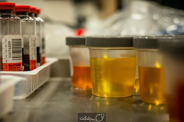 آزمایش ادرار | پزشکت