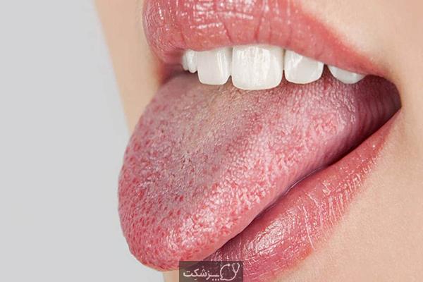 خشکی دهان | پزشکت