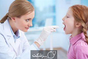 گلو درد | پزشکت