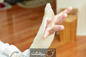 آرتروز انگشت شست | پزشکت