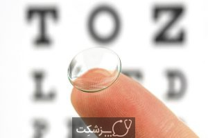 نزدیک بینی | پزشکت