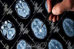 تومور های هیپوفیز | پزشکت