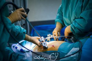 جراحی برداشتن تخمدان   پزشکت