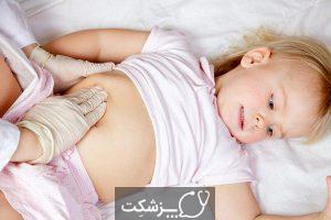 یبوست در کودکان   پزشکت