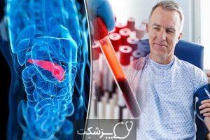 انواع درمان های سرطان لوزالمعده | پزشکت