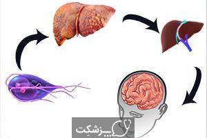 انسفالوپاتی کبدی | پزشکت