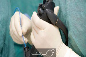 بازگشت اسید به مری | پزشکت