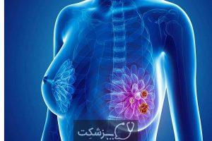 پستان فیبروکیستیک | پزشکت