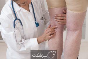 اسکلروتراپی | پزشکت