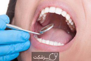 سندرم سوزش دهان | پزشکت