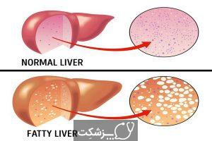 شایع ترین علائم کمبود پروتئین | پزشکت