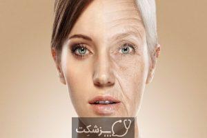 علائم پیری زودرس پوست | پزشکت