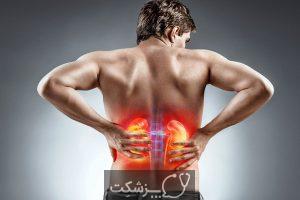 شایع ترین بیماری های دستگاه ادراری | پزشکت