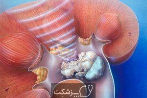 شایع ترین علل بیماری کلیه | پزشکت