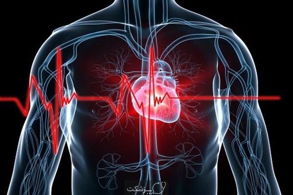 شایع ترین بیماری های قلبی عروقی | پزشکت