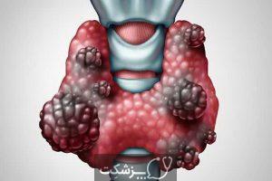 ندول های تیروئیدی | پزشکت