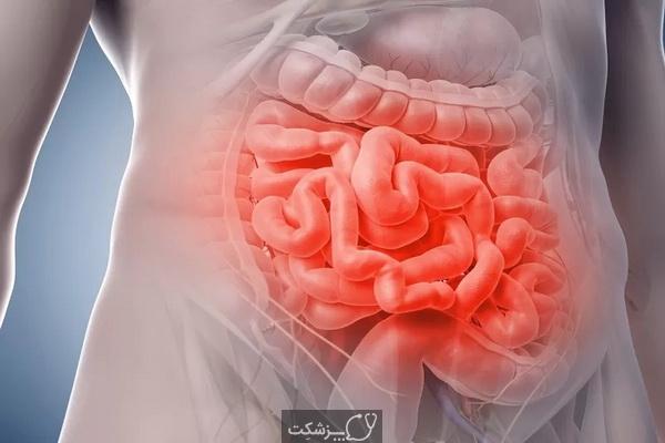 شایع ترین بیماری های دستگاه گوارش | پزشکت
