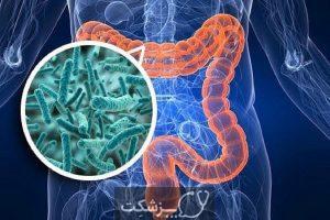 شایع ترین علل بیماری های گوارشی | پزشکت