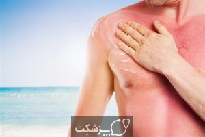 شایع ترین بیماری های فصل تابستان | پزشکت