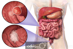 شایع ترین سرطان ها | پزشکت