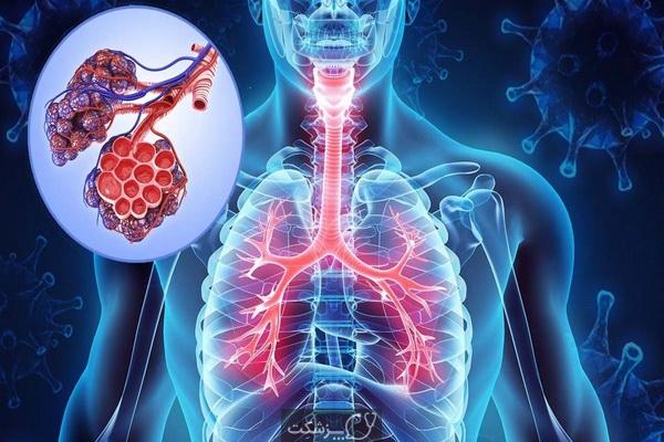 شایع ترین بیماری های تنفسی | پزشکت